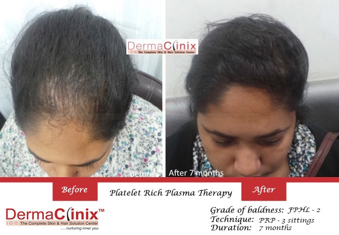 women hair transplant in Chennai