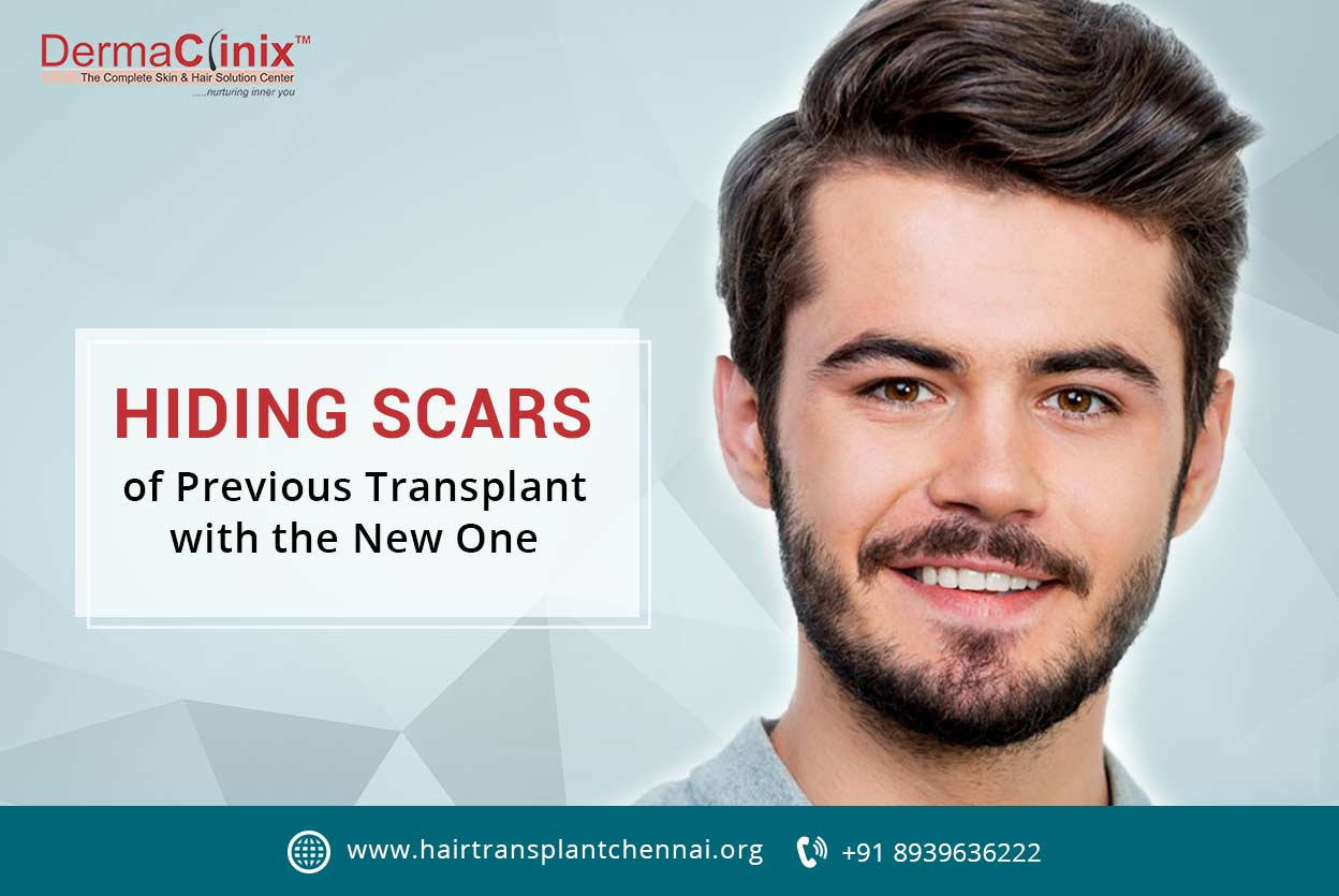 Hiding Scars of Previous Transplant at DermaClinix Chennai