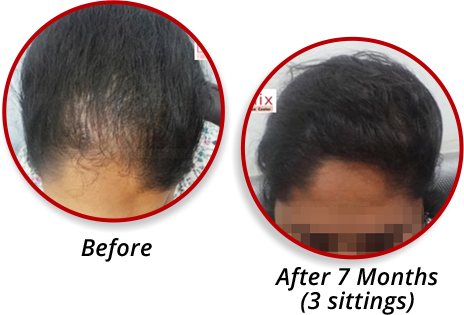 Prp Treatment In Chennai Prp Therapy Cost In Chennai For Hair